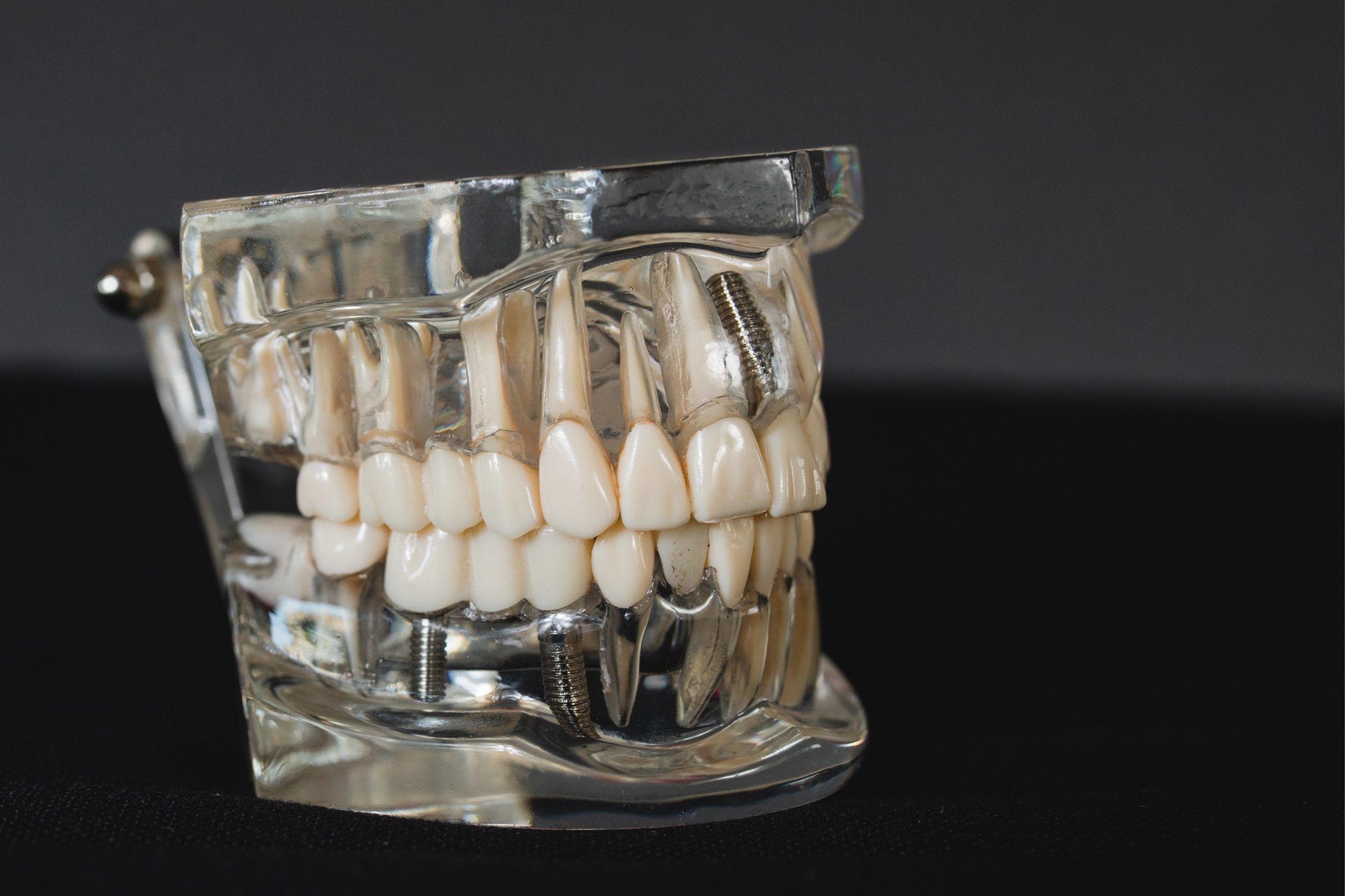 Eltandborste tänder